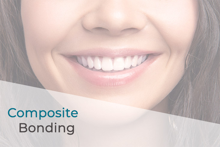 Women smiling showing teeth with text reading Composite Bonding