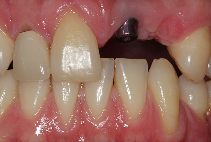 Implant 2 Before 2