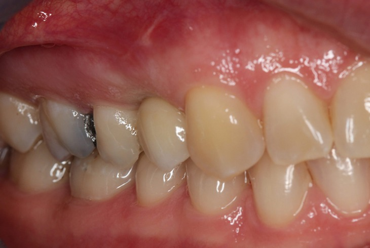 Implant 3 After