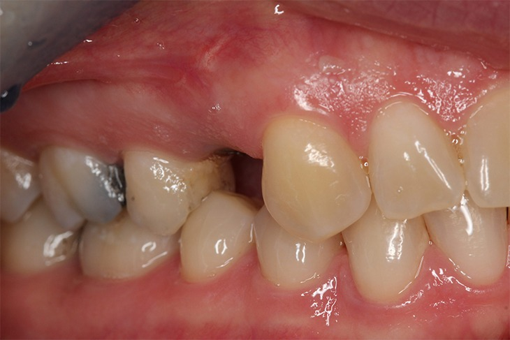 Implant 3 Before